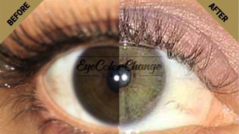 eyecolorchangelaser patient11