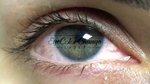 eyecolorchangelaser patient13
