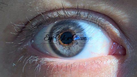 eyecolorchangelaser patient4