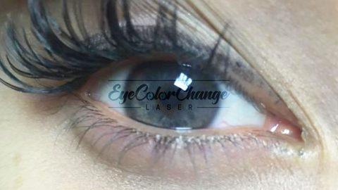 eyecolorchangelaser patient5