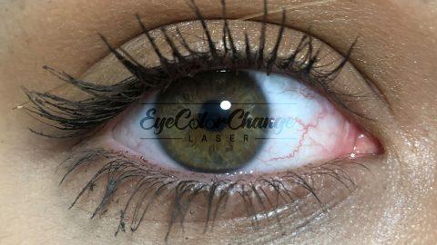 eyecolorchangelaser patient6