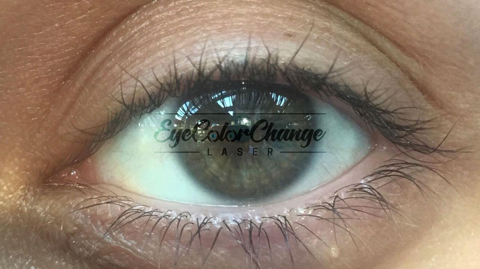 Eye color change with laser, eye color change surgery with laser, permanent eye color change with laser, eye color change laser turkey, eye color change laser price, eye color change laser experience, change eye color with laser before and after