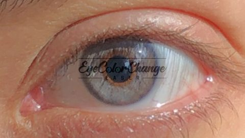 eyecolorchangelaser patient9