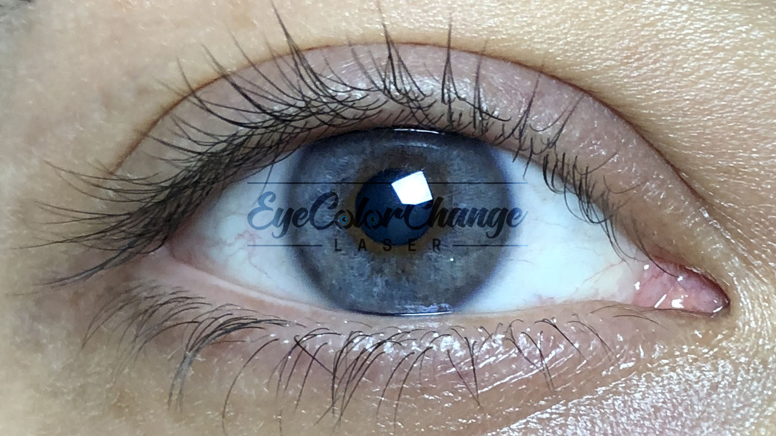 Eye color change with laser, eye color change surgery with laser, permanent eye color change with laser, eye color change laser turkey, eye color change laser price, eye color change laser experience, change eye color with laser before and after