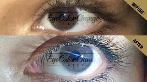 eye color change laser istanbul turkey